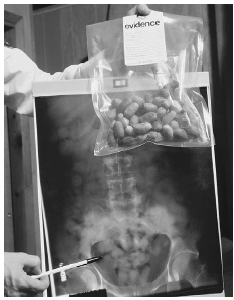 Heroin is smuggled into the United States in various ways. One method is to have drug couriers swallow small pouches of the powder and carry the drug into the country in their bodies. Here, a customs official shows an X ray of the drug pouches