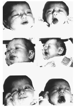 This sequence of pictures shows the reactions of babies from four to ten hours old prior to experiencing food of any sort. The left column shows their natural response to the sweetness of sucrose placed on the tongue, while the right column shows their response to the bitterness of quinine. Their facial expressions resemble those of adults tested for the same responses. PHOTO COURTESY OF DR. JACOB STEINER.