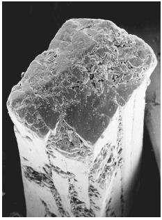Electron micrograph of a crystal of monosodium glutamate. MSG is one of the most widely used additives in food, and some people suffer reactions to it, especially a swollen liver, which extends the stomach and creates the discomforting sensation of having overeaten. COURTESY OF PHOTO RESEARCHERS, INC.