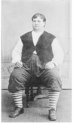 Due to his enormous size, Frank Williams, age 16, weight 442 pounds, was placed on display at the St. Louis Exposition in 1893. Obese teenagers are now a much more common sight. Photo by McKnight, Paducah, Kentucky, circa 1893. ROUGHWOOD COLLECTION.