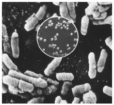 Microscopic section showing plague bacteria. CORBIS SYGMA