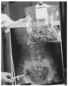 A U.S. customs agent shows x-ray evidence of a drug smugglers stomach containing capsules of narcotics, along with the narcotics recovered from the smuggler.