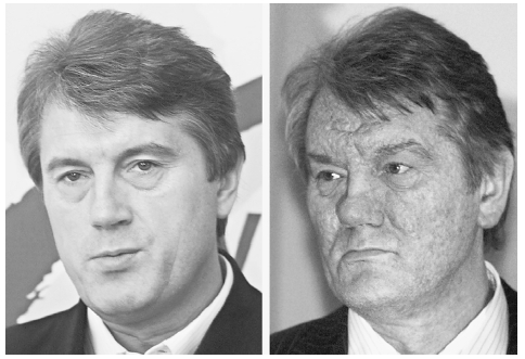 Ukranian President Viktor Yushchenko photographed in March 2002, left, and December, 2004, right. Toxicological analysis found the mysterious illness that scarred Yushchenkos face was caused by dioxin poisoning. AP/WIDE WORLD PHOTOS. REPRODUCED