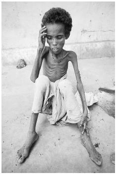In 1984 and 1985 sub-Saharan Africa, drought-induced crop failure and armed conflict coalesced, resulting in massive famine, with an estimated one million victims. Here, an emaciated child rests at a Red Cross refugee camp in Ethiopia. [CHRIS R