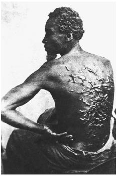 Slave owners in the antebellum South routinely practiced the most severe forms of corporal punishment. This c. 1862 photo (taken after the Civil War had started) shows the scars of one whipped slave. [CORBIS]