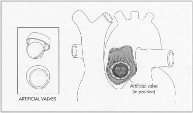 Artificial heart valves consist of an orifice, through which blood flows, and a mechanism that closes and opens the orifice.