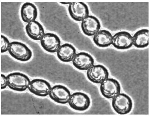 Chains of Streptococcus pyogenes.