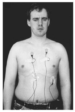 A male patient wears electrodes attached to his chest, which are connected to a Holter monitor at his waist. (Photograph by Dr. P. Marazzi, Photo Researchers, Inc. Reproduced by permission.)