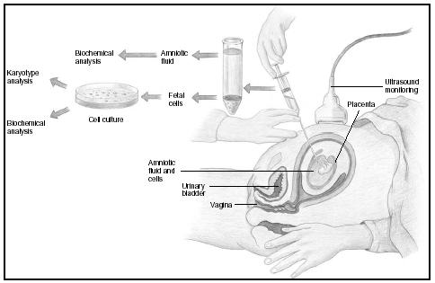 Amniocentesis is performed at 168 weeks of pregnancy. (Delmar Publishers, Inc. Reproduced by permission.) Ultrasound monitoring