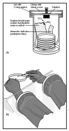 Anaerobic culture equipment: (A) anaerobic jar with generating packet and indicator; (B) technologist working with anaerobic culture. (Delmar Publishers, Inc. Reproduced by permission.)