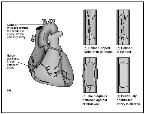 Procedure for coronary balloon angioplasty. (Delmar Publishers, Inc. Reproduced by permission.)