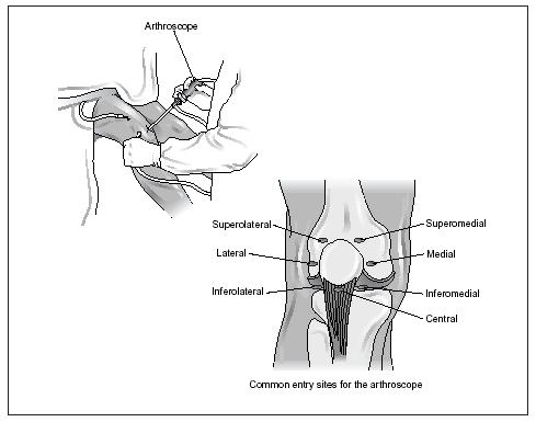 Arthroscopy is primarily used to help diagnose joint problems. This procedure, most commonly associated with knee and shoulder problems, allows accurate examination and diagnosis of damaged joint ligaments, surfaces, and other related joint structures. The illustration above indicates the most common entry sites, or portals, in knee arthroscopy. (Illustration by Electronic Illustrators Group.)