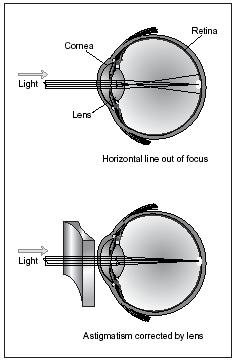 Astigmatism can be treated by the use of cylindrical lenses. The lenses are shaped to counteract the shape of the sections of the cornea that are causing the difficulty. (Illustration by Electronic Illustrators Group.)