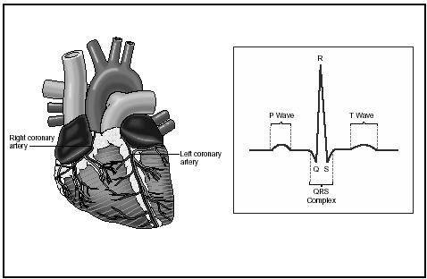 The heartbeat is controlled by electric impulses. To the right is a schematic representation of these impulses. (Delmar Publishers, Inc. Reproduced by permission.)