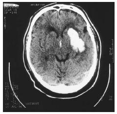 CAT scan of a brain showing a stroke resulting in hemorrhage (white area). (Custom Medical Stock Photo. Reproduced by permission.)