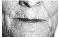 This elderly woman's lips turned purple due to central cyanosis, a condition most commonly due to slow blood circulation, leading to a bluish skin coloration. (Photo Researchers, Inc. Reproduced by permission.)