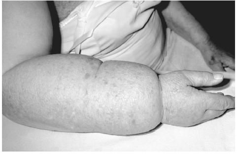 Gross lymphoedema in the arm of an elderly woman following radiotherapy treatment for breast cancer. (Photograph by Dr.P. Marazzi. National Audubon Society Collection/Photo Researchers, Inc. Reproduced by permission.)