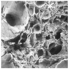 A scanning electron microscopy (SEM) of lung tissue showing the ruptured alveoli (air sacs) that characterize emphysema. (Photograph by Hossler, Custom Medical Stock Photo. Reproduced by permission.)