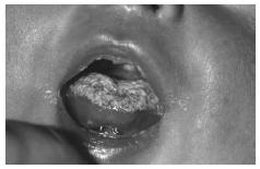 Oral candidiasis (thrush) in an infant, showing a white coating over the tongue. This infection is caused by a yeast-like fungus, usually Candida albicans. (Photograph by Dr. P. Marazzi. Science Source/Photo Researchers. Reproduced by permission.)