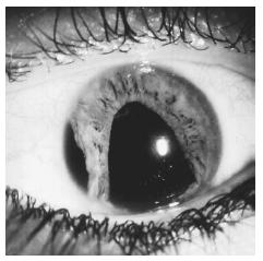 A close-up view of an inflamed eye in acute glaucoma, with an irregularly enlarged pupil. (Custom Medical Stock Photo. Reproduced by permission.)