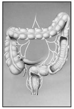 The large intestine consists of four sections: the ascending (left), transverse (top), descending (right), and sigmoid (bottom) colon. (Photograph by John Bavosi. Science Source/Photo Researchers. Reproduced by permission.)