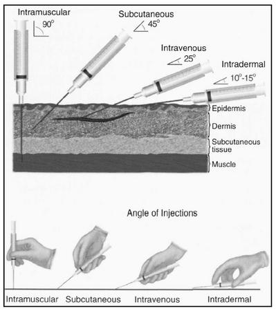 Angles of insertion for injections. (Delmar Publishers, Inc. Reproduced by permission.)
