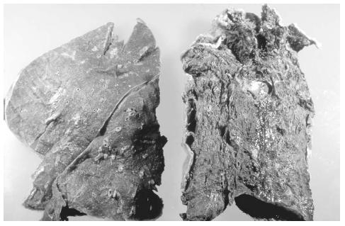 A normal lung (left) and the lung of a cigarette smoker (right). (Photograph by A. Glauberman, Photo Researchers, Inc. Reproduced by permission.)
