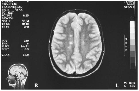 This image, made using magnetic resonance imaging (MRI), shows lesions on the left lobe of the brain of a multiple sclerosis patient. (Comp-Unique/Custom Medical Stock Photo. Reproduced by permission.)