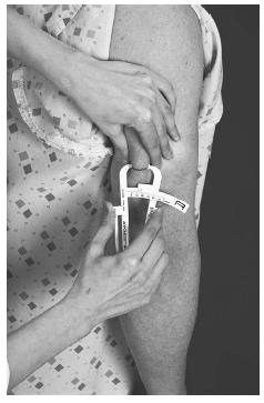 Measurement of triceps skinfold, which is an indicator of total body fat. (Delmar Publishers, Inc. Reproduced by permission.)
