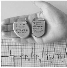 Two types of pacemakers. (Photograph by Eamonn McNulty. National Audubon Society Collection/Photo Researchers, Inc. Reproduced by permission.)