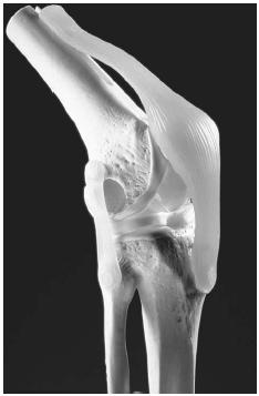 Artificial knee joint attached to human bones. (Photograph by Mike Devlin. National Audubon Society Collection/Photo Researchers, Inc. Reproduced by permission.)