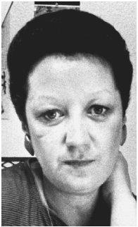 Norma McCorvey decided she was going to support the anti-abortion cause in the 1990s. Reproduced by permission of the Corbis Corporation.